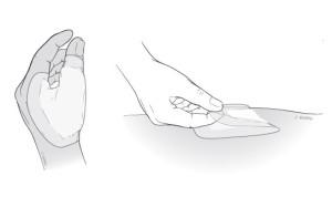 Cuidado de heridas: Instrucciones para el hogar