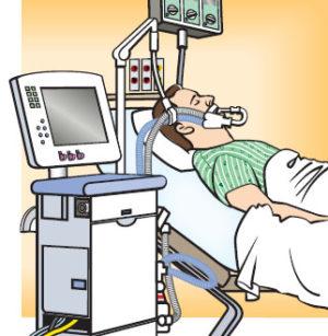 La ventilación mecánica, un tratamiento de soporte vital